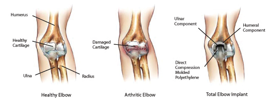 elbow pain from lifting