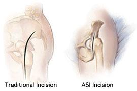 ASI (Anterior Supine Intermuscular) Hip Replacement