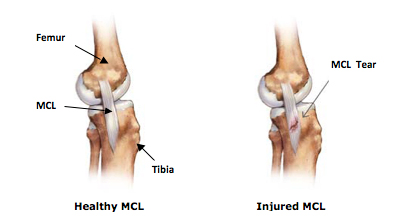 Knee Ligament Injuries NYC | MCL & LCL Tear Treatment in Manhattan