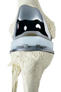 Total Knee Replacement implant