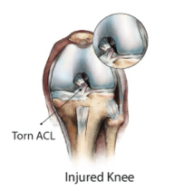 Causes of Knee Pain knee_injury_acl_tear