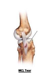 Causes of Knee Pain mcl_tear