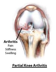 Causes of Knee Pain partial_arthritis