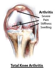 Causes of Knee Pain_total_arthritis