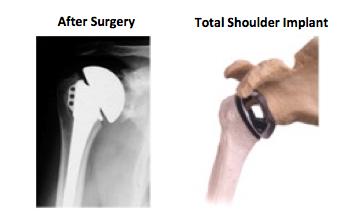 Shoulder Resurfacing surgery_implant