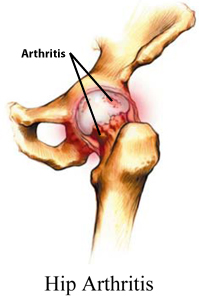 how to live with arthritis of the hip